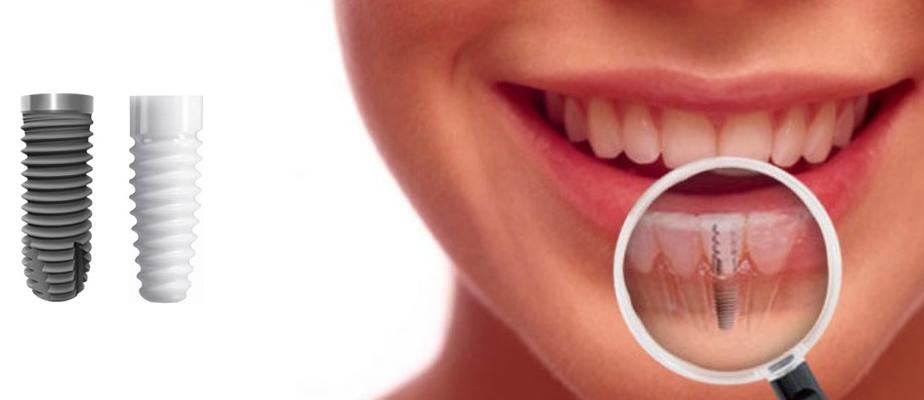 زراعة الأسنان هو أفضل الطرق العلاجية لتعويض الأسنان المفقودة وإعادة تأهيل  الفم والفكين فنحن في أسنان تاور نحرص على استخدام أجود أنظمة زرع الأسنان  وأكثرها ...